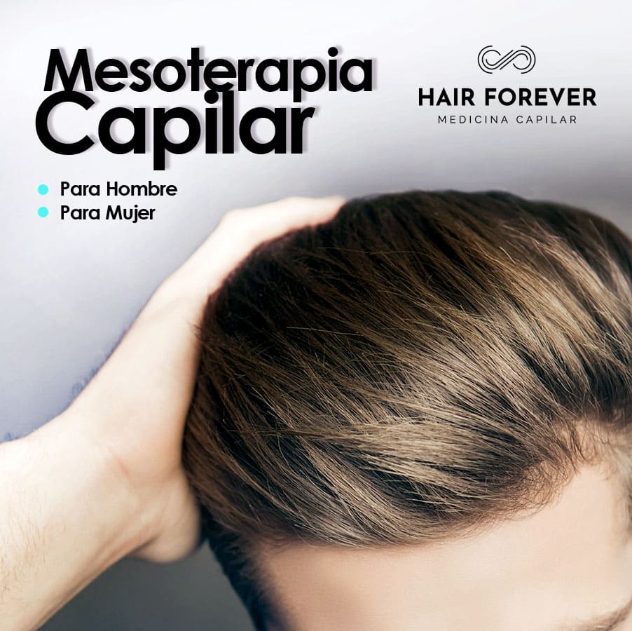 Mesoterapia capilar en barcelona