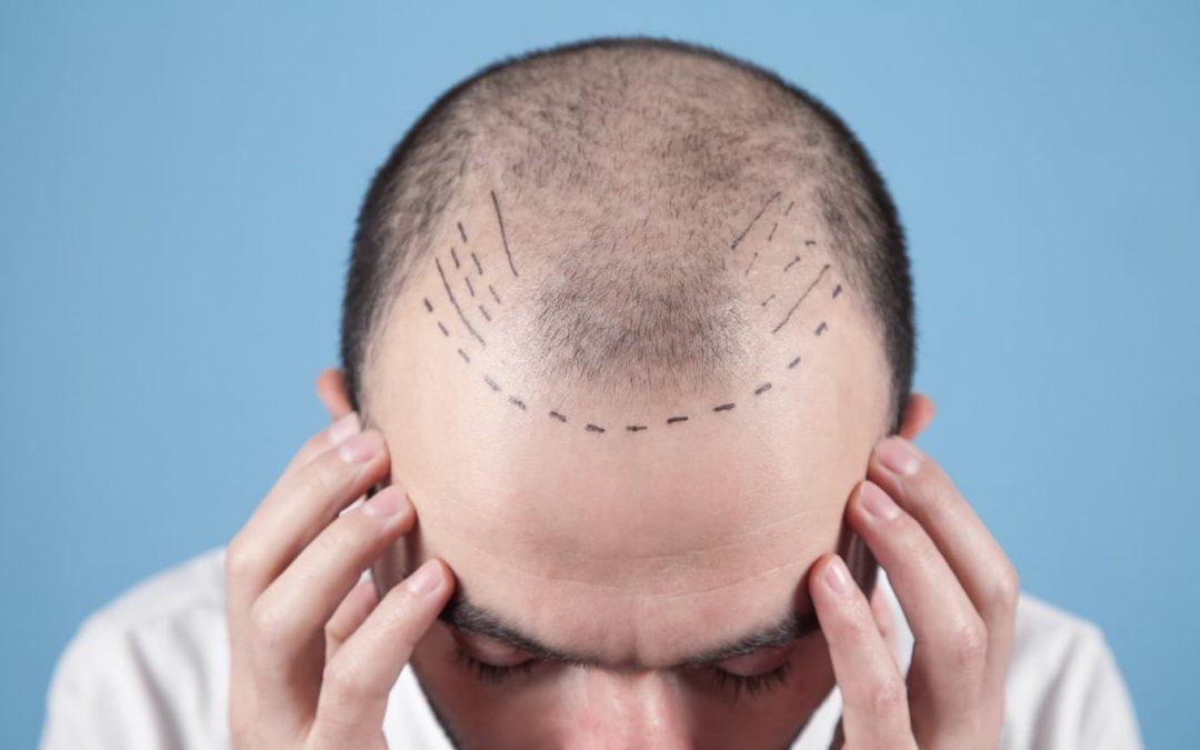 trasplante de cabello FUE
