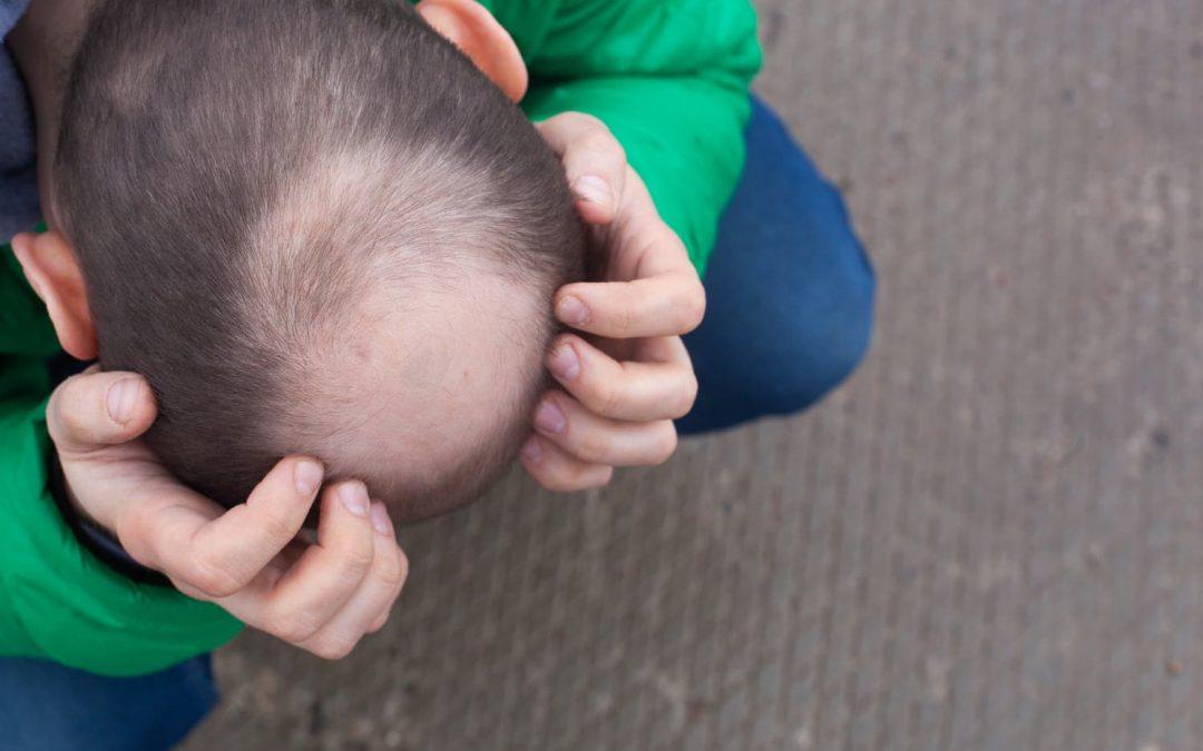 ¿Por qué el trasplante de cabello FUE se considera el mejor?