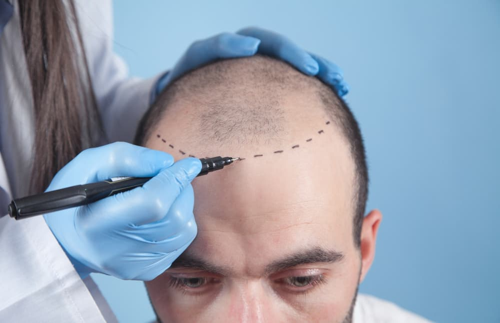 doloroso someterse a un trasplante de cabello